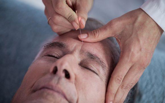 Akupunktur für Allergie | Akupunktur bei Migräne & Kopfschmerzen